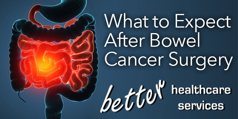 What To Expect After Bowel Cancer Surgery Better Healthcare Services Better Healthcare Services